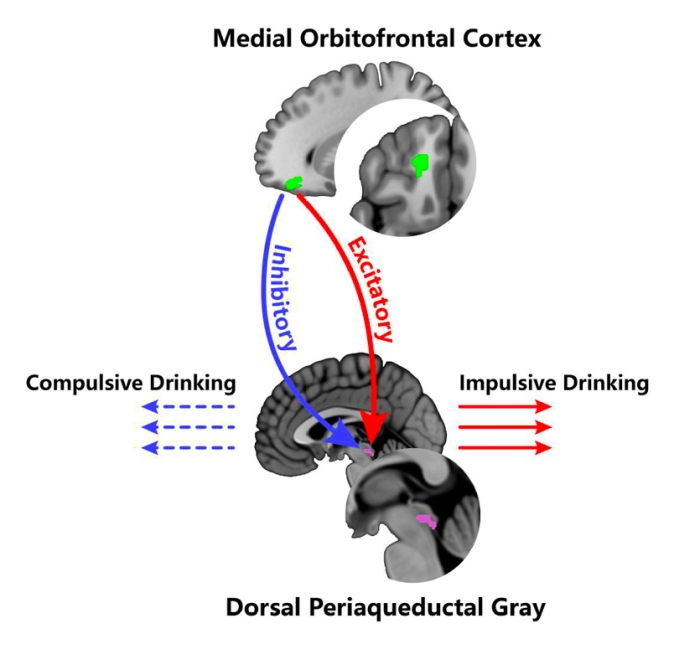 Alcoholic Brain Diagram Showing Neural Pathway