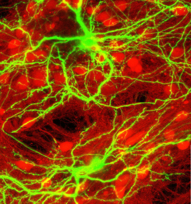 Brain Cells - Image of neurons firing, green on red background